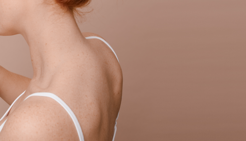 What causes back acne & how to get rid of it