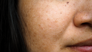 What Is Melasma And How Can I Treat It?